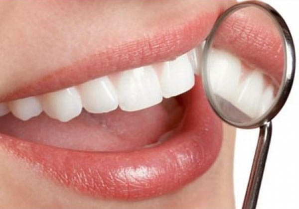 albirea-dentara-perfect-smile-studio