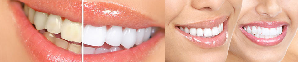 estetica-dentara-perfect-smile-studio